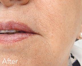 derma filler after